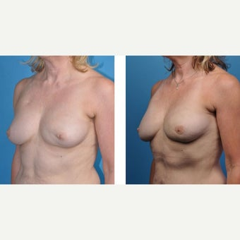 57 year old woman treated with Breast Reconstruction after 2524335