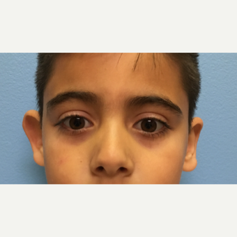 6 year old boy treated with right otoplasty before 3036756