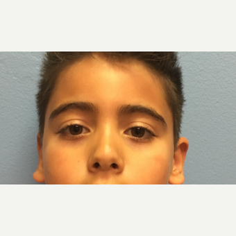 6 year old boy treated with right otoplasty after 3036756