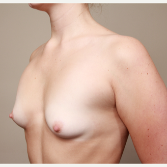 18-24 year old woman treated with Breast Augmentation before 3487663