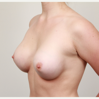 18-24 year old woman treated with Breast Augmentation after 3487663
