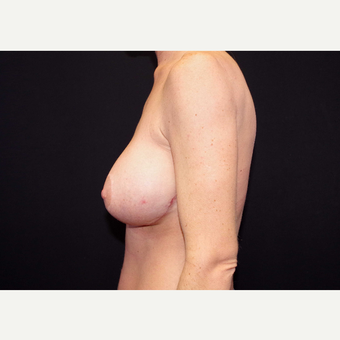 35-44 year old woman treated with Breast Implants after 3441168