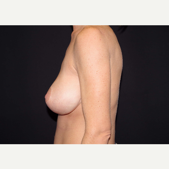 35-44 year old woman treated with Breast Implants before 3441168