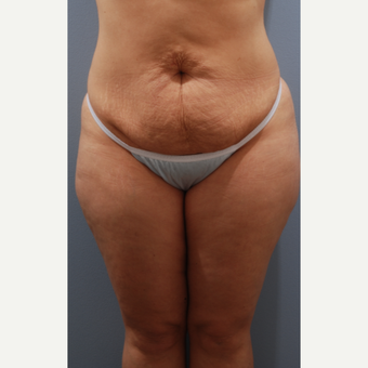 35-44 year old woman treated with Tummy Tuck before 3590099
