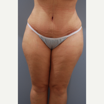 35-44 year old woman treated with Tummy Tuck after 3590099