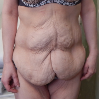 35-44 year old woman treated with Tummy Tuck before 2051545