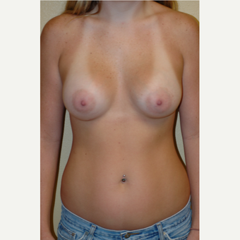 25-34 year old woman treated with Breast Augmentation after 3531479