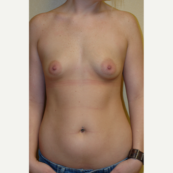 25-34 year old woman treated with Breast Augmentation before 3531479