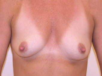 Breasts Before and After 350cc Gummy Bear Silicone Implants before 1093510