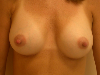 Breasts Before and After 350cc Gummy Bear Silicone Implants after 1093510