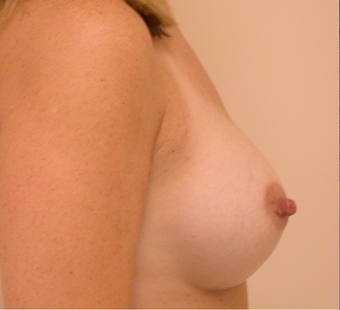 Breasts Before and After 350cc Gummy Bear Silicone Implants 1093510