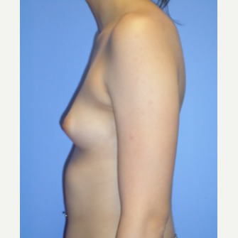 18-24 year old woman treated with Breast Implants before 3370282