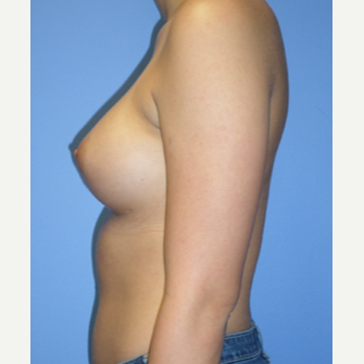 18-24 year old woman treated with Breast Implants after 3370282
