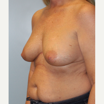 45-54 year old woman treated with Breast Implant Removal