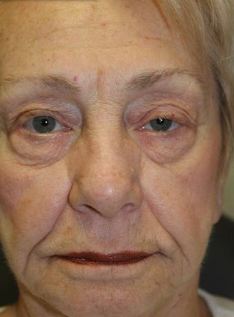 65-74 year old woman treated with Eyelid Surgery before 3227764