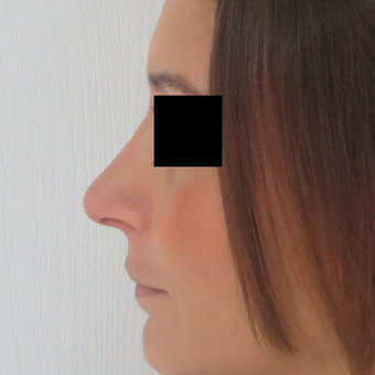 25-34 year old woman treated with Rhinoplasty after 3511036