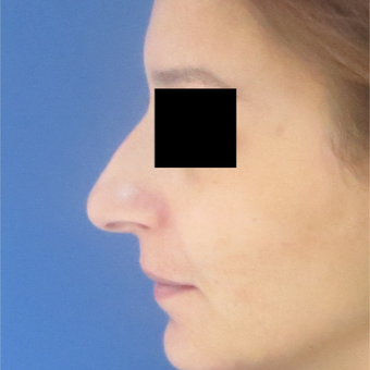 25-34 year old woman treated with Rhinoplasty before 3511036