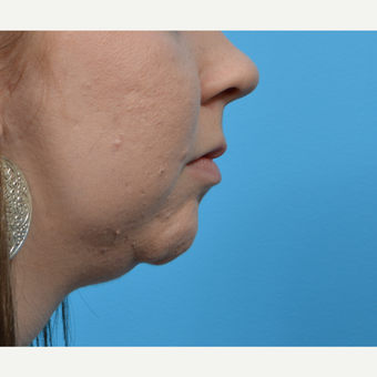 18-24 year old woman treated with Chin Liposuction before 3792835