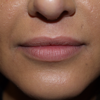 25-34 year old woman treated with Lip Augmentation before 3668762