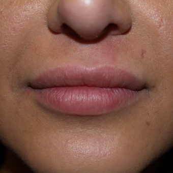 25-34 year old woman treated with Lip Augmentation after 3668762
