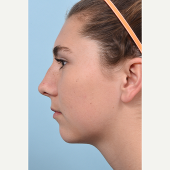 17 year old woman treated with Rhinoplasty and open septoplasty after a soccer injury before 3298542