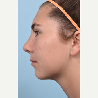 17 year old woman treated with Rhinoplasty and open septoplasty after a soccer injury after 3298542