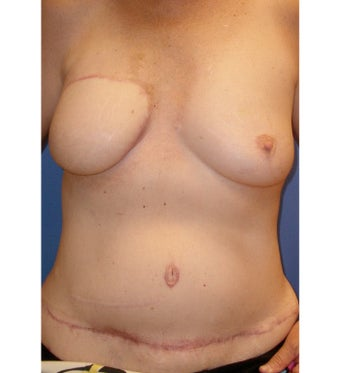 Breast Reconstruction after 1420857