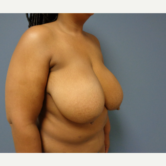 35-44 year old woman treated with Breast Reduction before 3628641