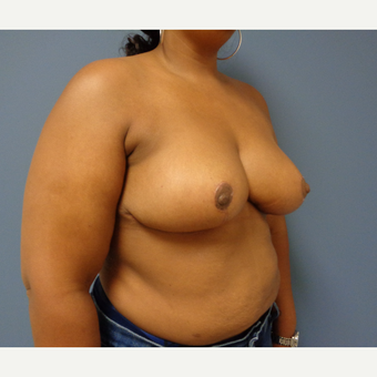 35-44 year old woman treated with Breast Reduction after 3628641