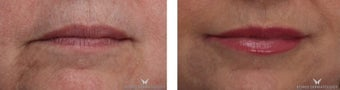 Lip Augmentation with Juvederm Ultra