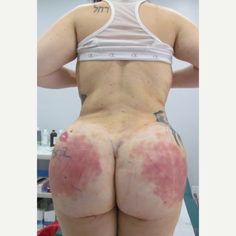 25-34 year old woman treated with Brazilian Butt Lift after 3663856