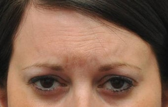 Botox for treatment of upper face wrinkles before 1022034