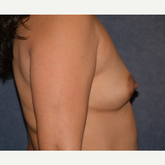 35-44 year old woman treated with Breast Augmentation before 3455169