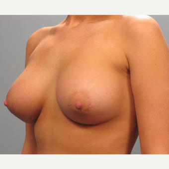 18-24 year old woman treated with Breast Augmentation after 3293846
