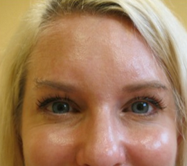 35-44 year old woman treated with Botox after 2257336