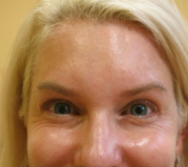 35-44 year old woman treated with Botox before 2257336
