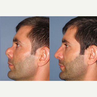 35-44 year old man treated with Revision Rhinoplasty before 3522906
