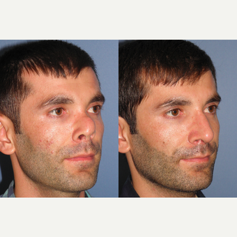 35-44 year old man treated with Revision Rhinoplasty after 3522906