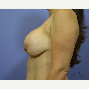 35-44 year old woman treated with Breast Implant Revision before 3421726