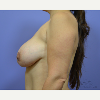 35-44 year old woman treated with Breast Implant Revision after 3421726