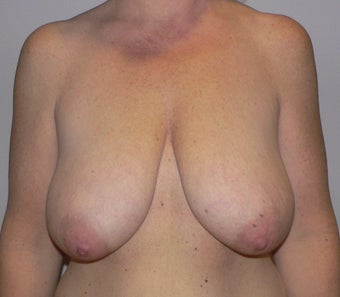 49 year old woman has Breast Lift before 990736