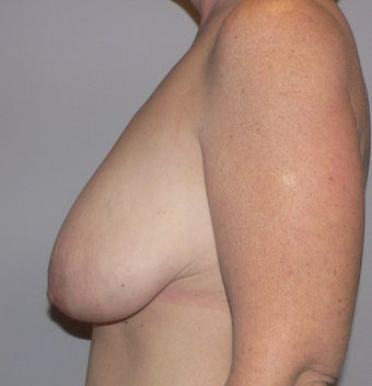 49 year old woman has Breast Lift 990736