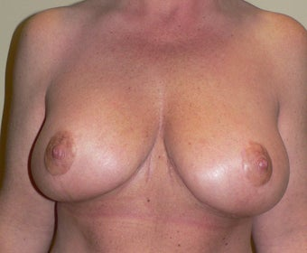 49 year old woman has Breast Lift after 990736
