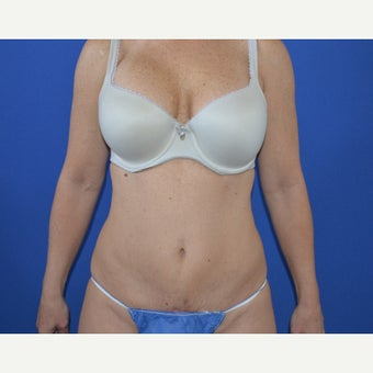 45-54 year old woman treated with Mini Tummy Tuck after 1622545