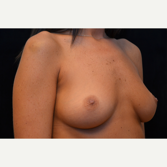 25-34 year old woman treated with Breast Augmentation before 3265252
