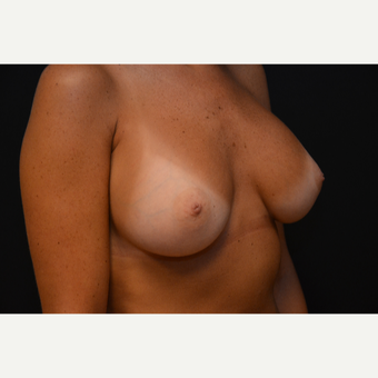 25-34 year old woman treated with Breast Augmentation after 3265252