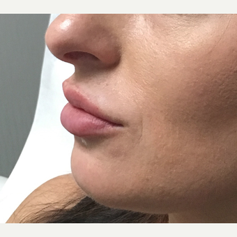 25-34 year old woman treated with Juvederm after 3684561