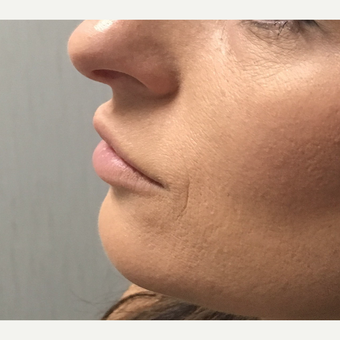 25-34 year old woman treated with Juvederm before 3684561