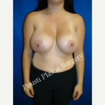 18-24 year old woman treated with Breast Implants after 3494923
