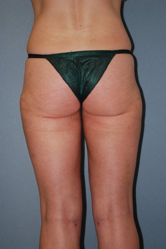 35 Year Old White Female, Liposuction after 1417038